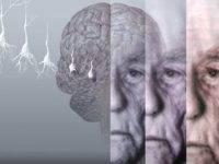 باحثو هارفارد يكشفون النقاب عن نظرية جديدة لعلاج مرض الزهايمر – كارين واينتروب / ترجمة: عبير أسامة